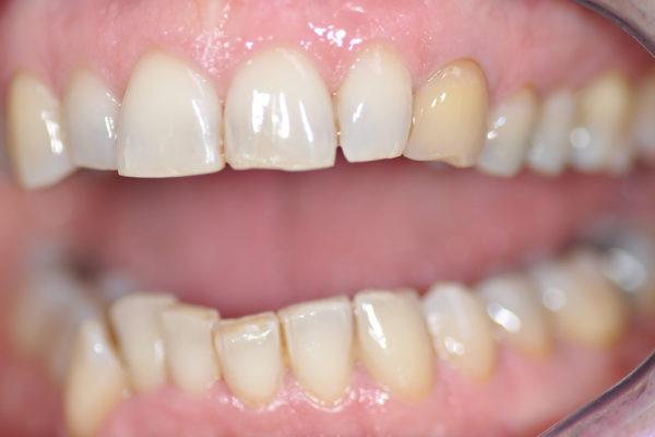 Eclaircissement interne de dent dévitalisée plus composite