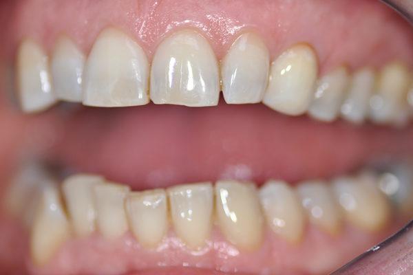 Blanchiment interne de dent dévitalisée plus composite