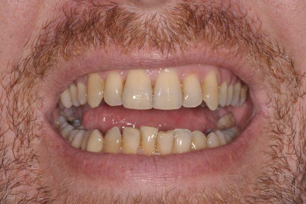 Blanchiment dentaire avant 1