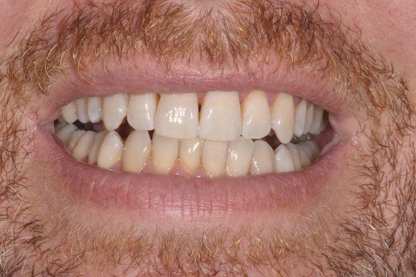 Blanchiment dentaire après une semaine