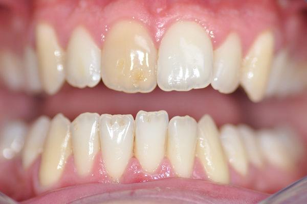 Une facette Feldspathic avec éclaircissement dentaire avant