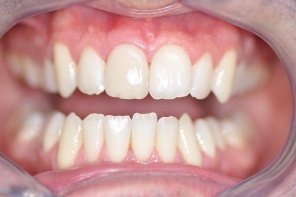 Une facette Feldspathic avec éclaircissement dentaire après