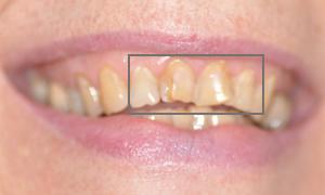 Facettes céramiques dentaires Feldspathic des 4 incisives avant