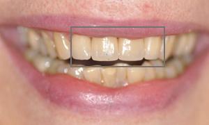 Facettes céramiques dentaires Feldspathic des 4 incisives après