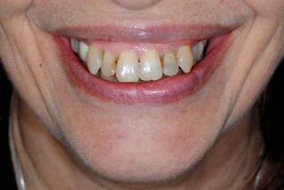Cas traité par Orthodontiste incognito plus blanchiment dentaire avant