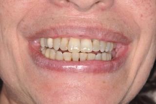 Cas traité par Orthodontiste incognito plus blanchiment dentaire apres