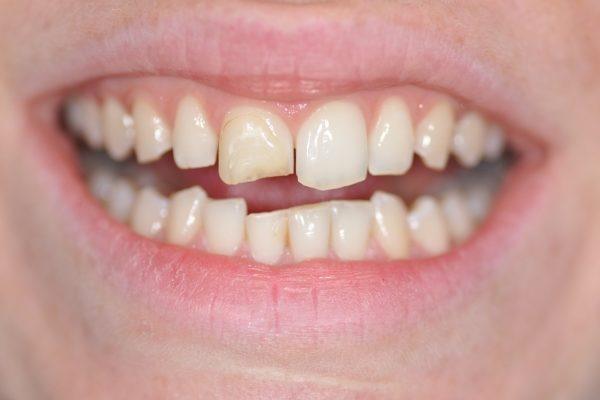 Restauration du sourire par composite dentaire debut