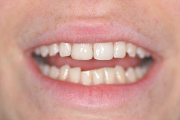 Restauration du sourire par composite dentaire milieu