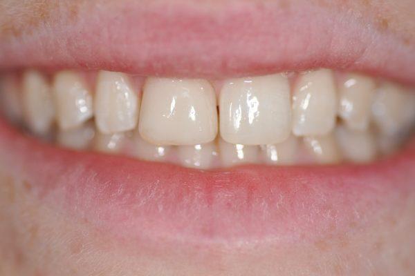 Restauration du sourire par composite dentaire fin